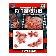 FX Transfers Bubonic Plague