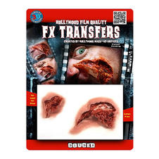 FX Transfers Fles wound,